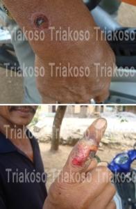 Anthraks bentuk kulit pada penderita. Tampak lesi yang khas dengan bagian mengering dan menghitam di tengah luka